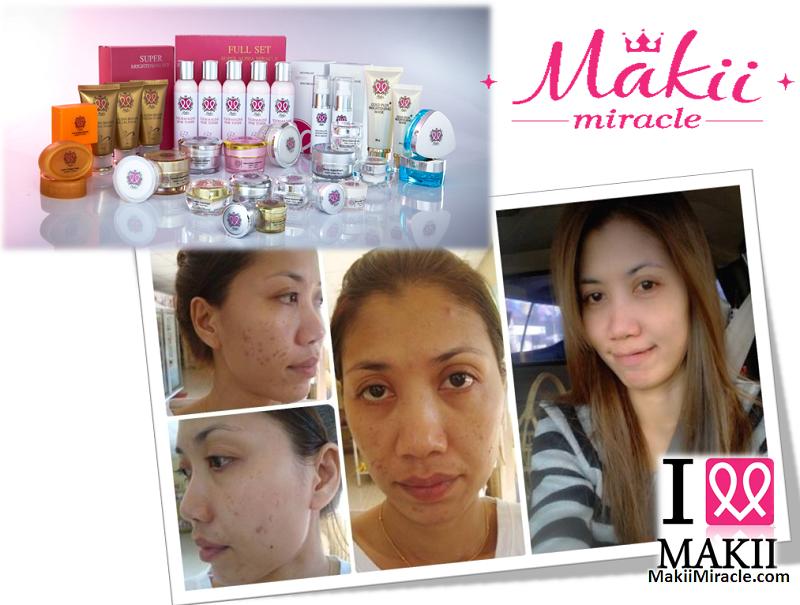 Makii Miracle